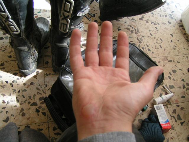 Jediné zranenie po nehode, popálenina na dlani.